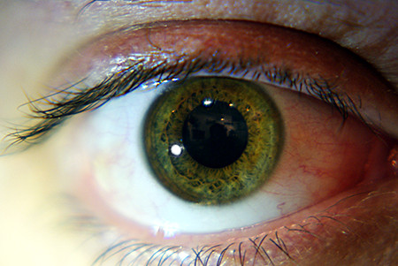 Hazel Eyes Learn Why People With Greenish Eye Color Are Rare Guy