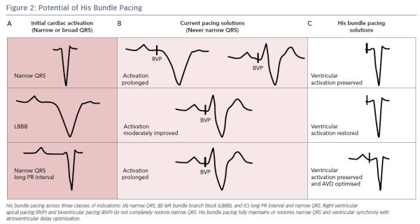 biventricular pacing for atrioventricular block and - 1141×609