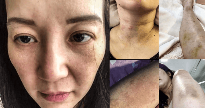 Kris Aquino is suffering from Chronic Spontaneous Urticaria