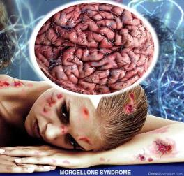 chemtrails-morgellons