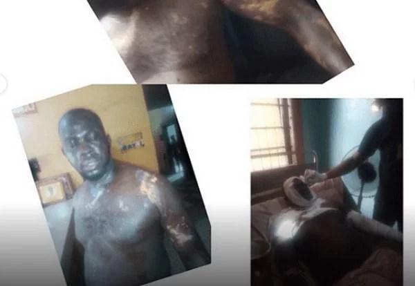 POLICE-BATHED-ACID-NIGERIA