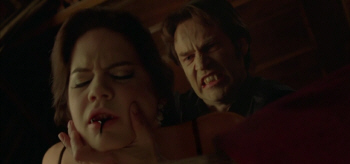 true-blood-s3e3-it-hurts-me-too