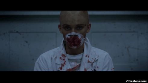 AnnaLynne McCord Bald Head Excision