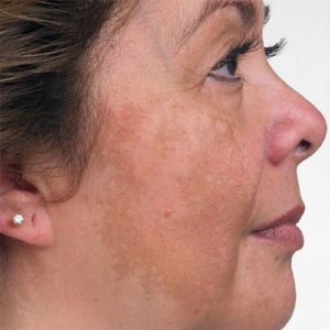 Image result for Some Common Melasma Treatments