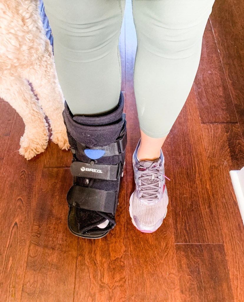 A broken foot in an orthopedic boot makes running with friends difficult. On the bright side? I can still go to small parties to shop with small-business women.
