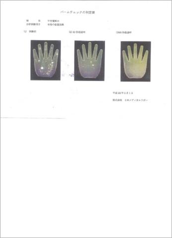 手指の殺菌効果についてパームチェックの判定表