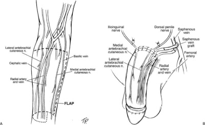 Diagram showing the way nerves are harvested to give sensation after phalloplasty
