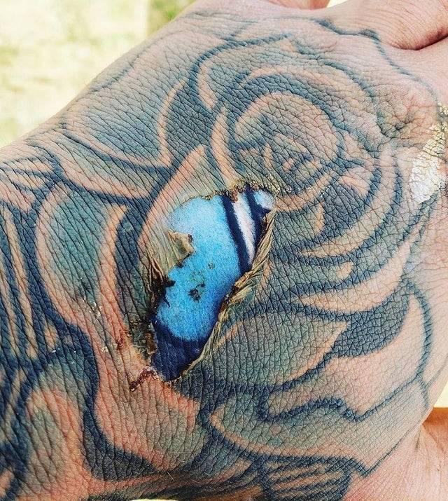 Quemadura en la epidermis de la mano que deja expuestos los brillantes colores de un tatuaje atrapado en la dermis