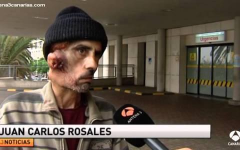 """""""El hombre de los quistes gigantes en la cara es atendido en urgencias"""""""