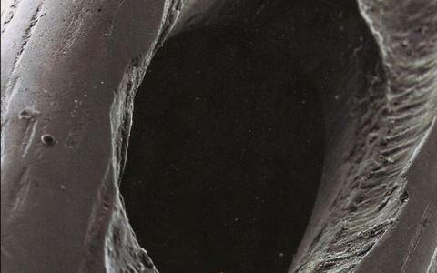 Embrión humano en el ojo de una aguja de metal.