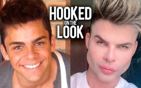 """Un instagramer brasileño se gasta 80.000 dólares en tener """"la cara perfecta"""""""