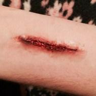 Cut on arm