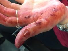 3rd Degree burns on hands