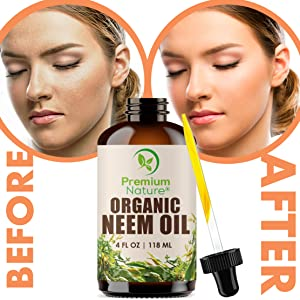 Our Neem Oil is the highest quality cold-pressed oil and provides many benefits