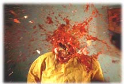 Exploding_head