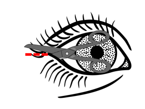 Lateral canthotomy step 3