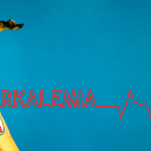 Hyperkalemia title image