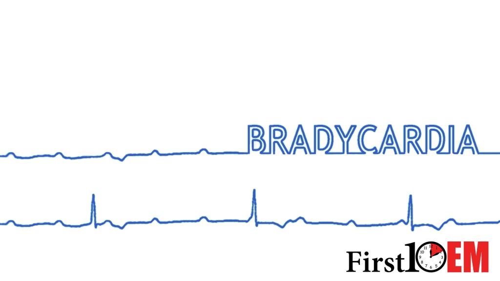 Managing unstable bradycardia - First10EM