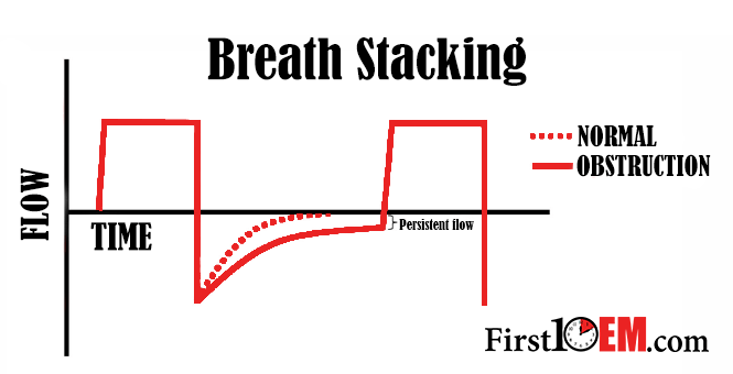 Breath Stacking FIRST10EM.png