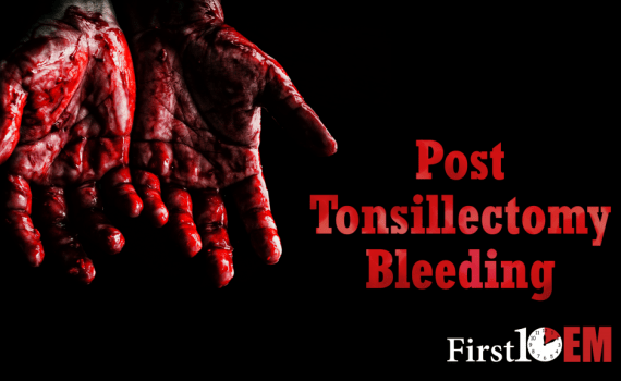 Tonsillectomy hemorrhage