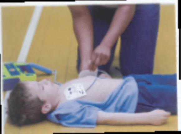 USING AED PADS ON A LARGER CHILD