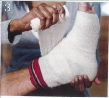 Sprained ankle injury