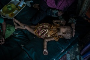 Child lays on mat in refugee camp