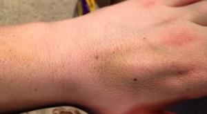 Crazy bruising