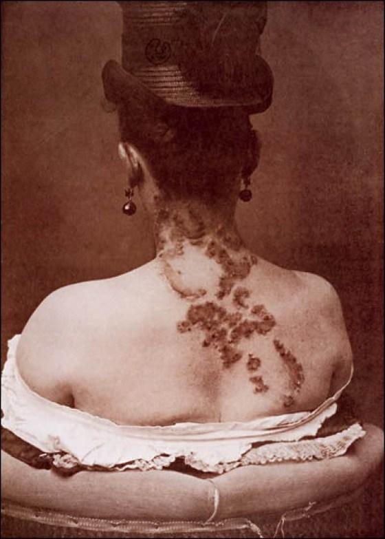 Prostytucja-syfilis-wiktoriański-Londyn-19-wiek-Anglia