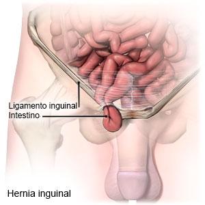 Hernia inguinal observando el paso del intestino por el conducto inguinal