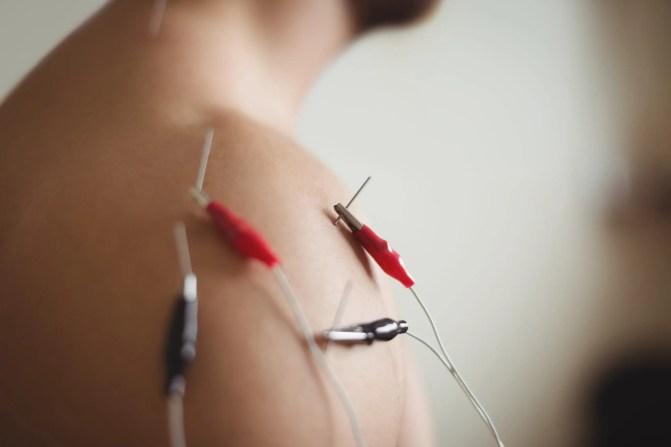 neuromodulación percutánea