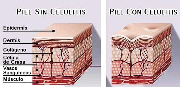 Celulitis-Nunca-Mas-piel