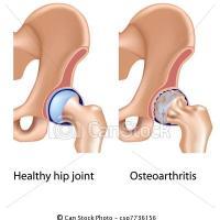 6 diferenças entre osteoartrite e artrite reumatóide