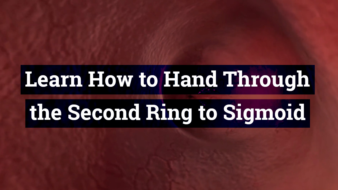 Learn How to Hand Through the Second Ring to Sigmoid