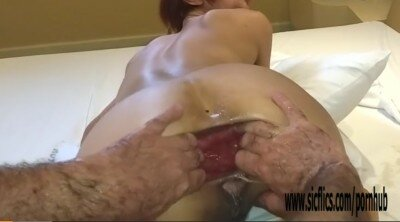 Extreme Double Fisting Her Gaping Brazilian Ass