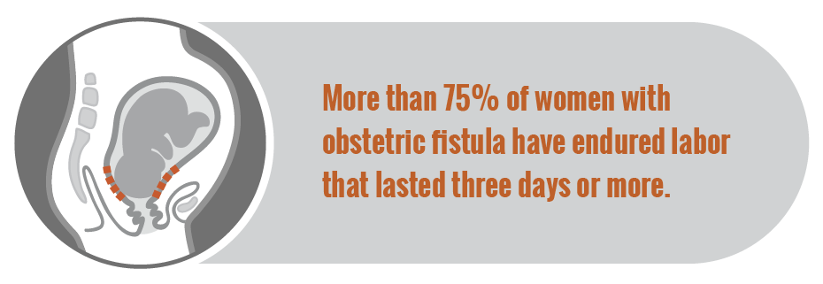 How Fistula Works