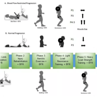 Model for anvendelse af okklusionstræning efter immobilisering