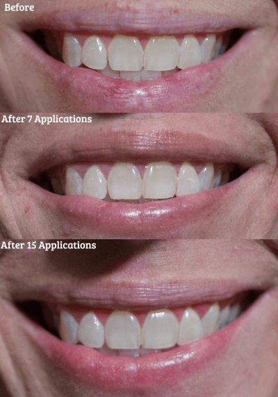 before and after teeth whitening with smile brilliant