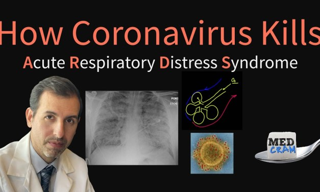 How Coronavirus Kills: Acute Respiratory Distress Syndrome (ARDS) & COVID-19 Treatment