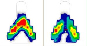 Gebiomized saddle pressure mapping image