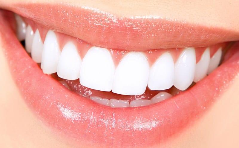 denti-bianchi-sorriso