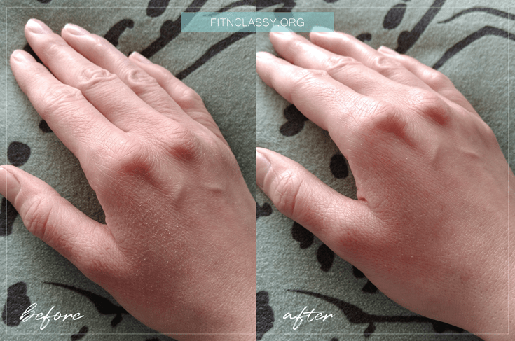 Hand before and after Native Collagen DNA application