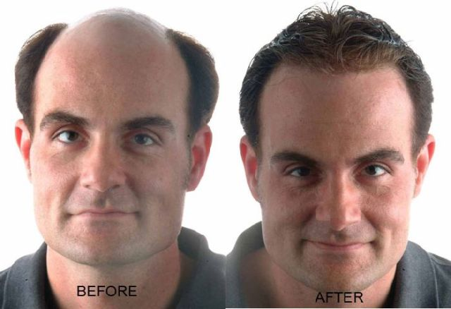 procerin results and reviews - hair regrowth