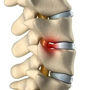 back pain - ruptured disc