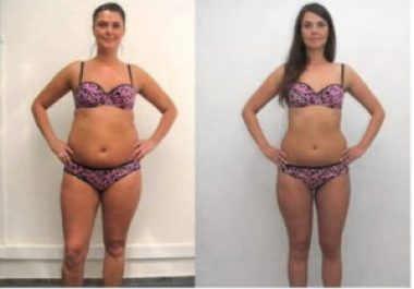 before and-after-weight-loss-stories