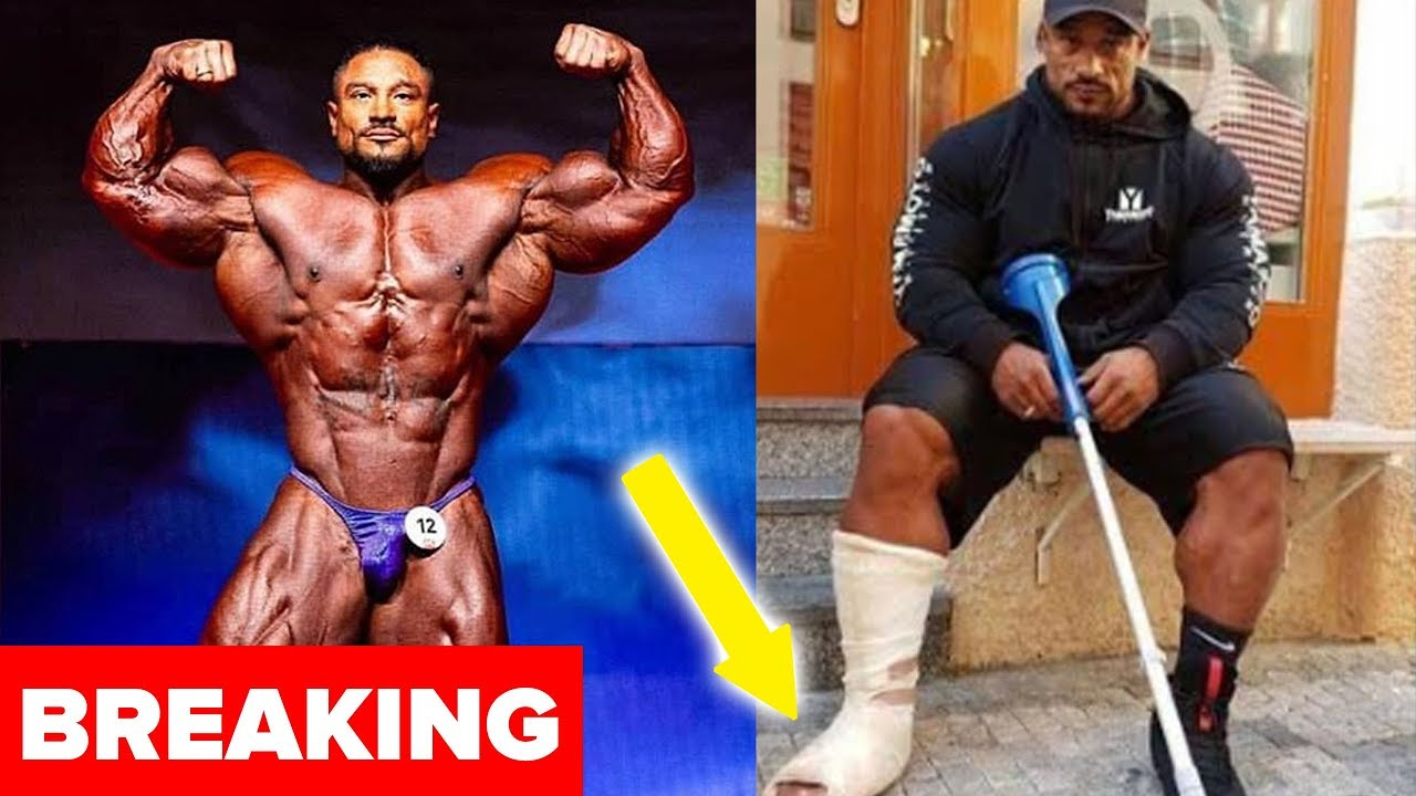 Breaking Roelly Winklaar Broke His Leg At 2018 Evls