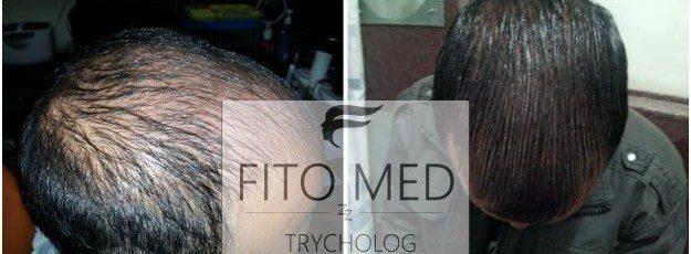 wypadanie włosów - leczenie w Częstochowie