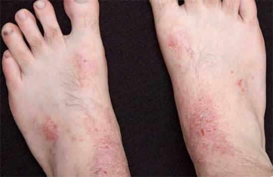 Псориаз начальной стадии лечение симптомы и фото