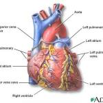 Do You Know The Difference??  Cardiac Arrest vs. Heart Attack