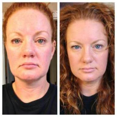 neocell collagen before and afters